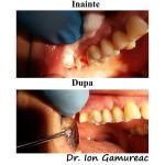 Dr.-Gamureac-Ion-lucrari-dentare